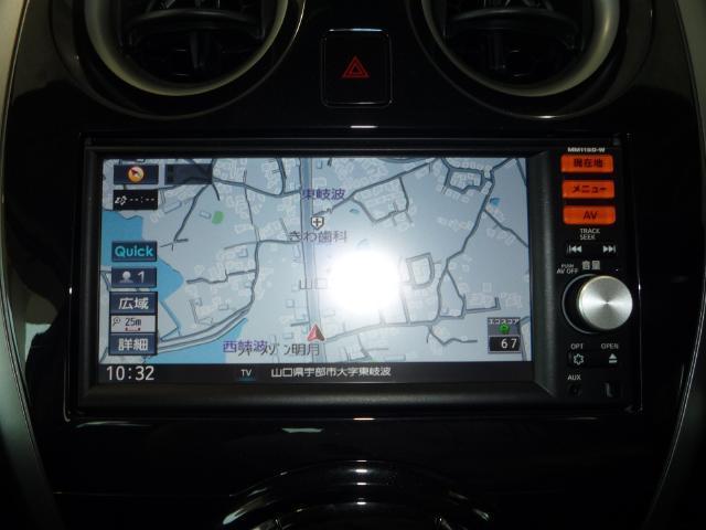 日産 ノート X DIG-S 自動ブレーキ アラウンドビュー